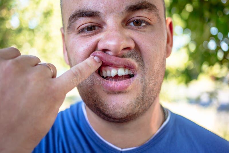 Homem novo com um dente lascado foto de stock royalty free
