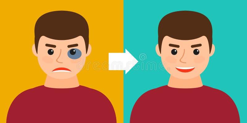 Homem novo com uma equimose ou sem Antes e depois ilustração do vetor