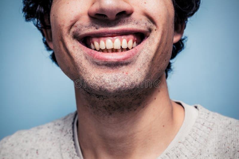 Homem novo de sorriso com dentes sujos imagem de stock