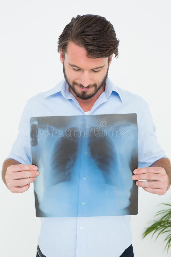 Homem novo de sorriso que guarda o raio X do pulmão fotografia de stock royalty free