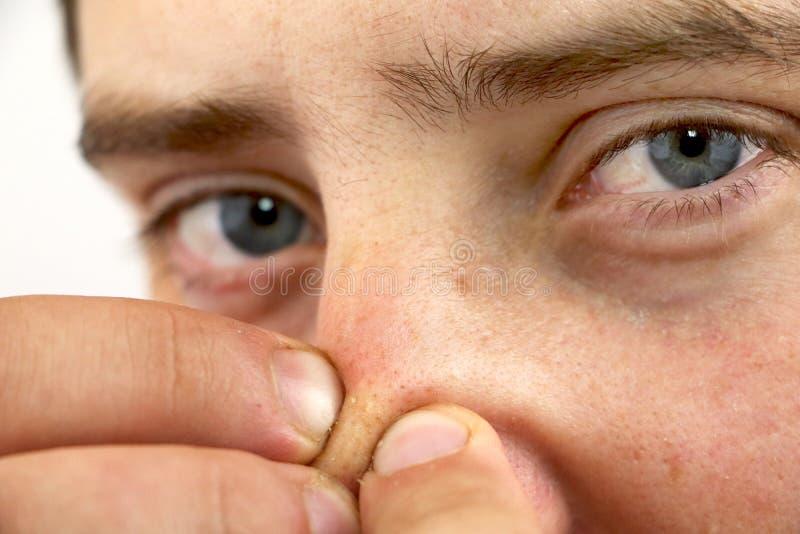 Homem novo do retrato do close up que olha a câmera, espremendo a acne ou as pústulas no nariz Close-up como o fundo para a higie fotos de stock