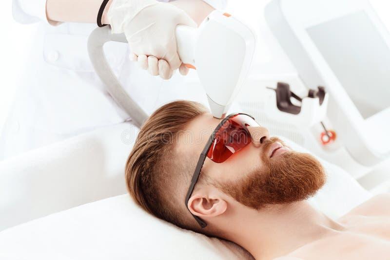 Homem novo que recebe cuidados com a pele do laser na cara foto de stock