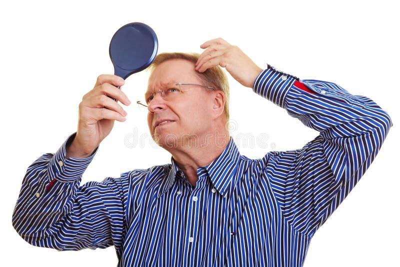 Homem que presta atenção a sua linha do cabelo receding imagens de stock royalty free