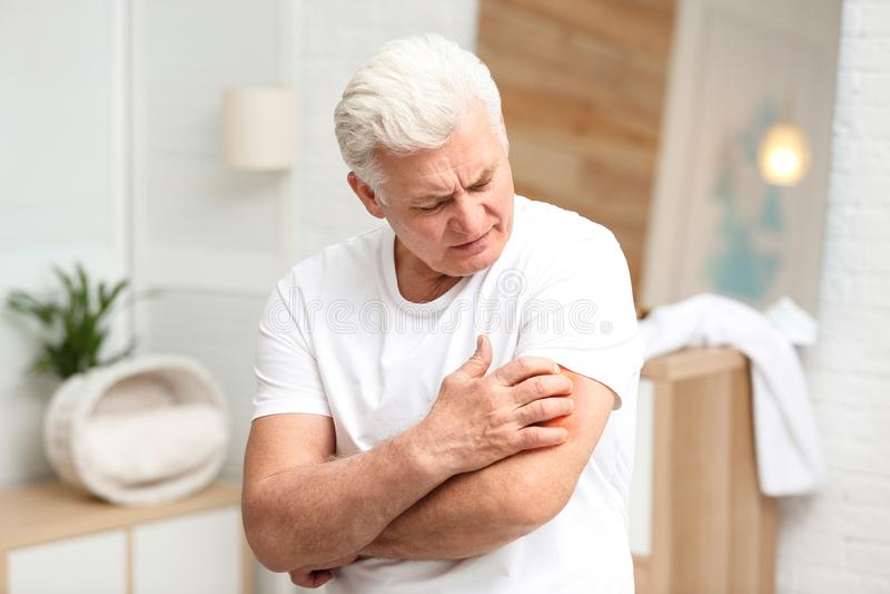 Homem superior que risca o braço Sintoma da alergia foto de stock royalty free