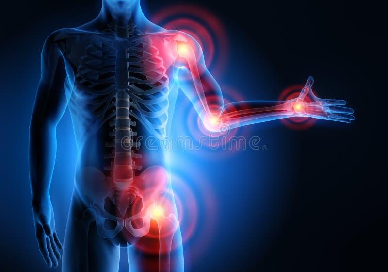 Homme avec des symptômes lourds de douleurs articulaires illustration libre de droits