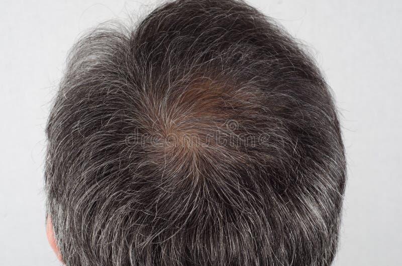Homme avec la perte des cheveux et les cheveux gris image libre de droits