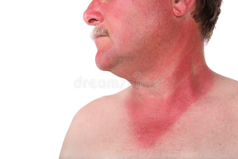 Homme avec un coup de soleil image libre de droits