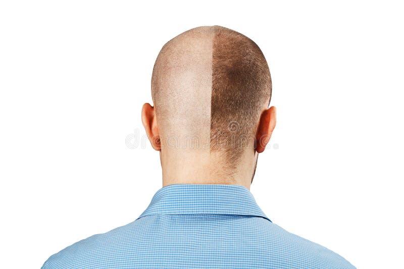 Homme de portrait avant et après la perte des cheveux, greffe sur le fond blanc d'isolement Double personnalité, vue arrière images libres de droits