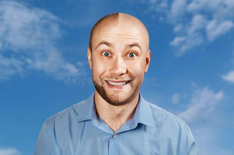 Homme de portrait avant et apr?s la perte des cheveux, greffe sur le fond de ciel bleu Double personnalit? images libres de droits