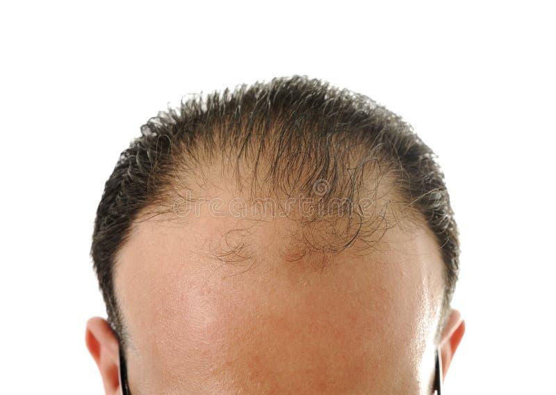 Homme desserrant le cheveu, calvitie images stock