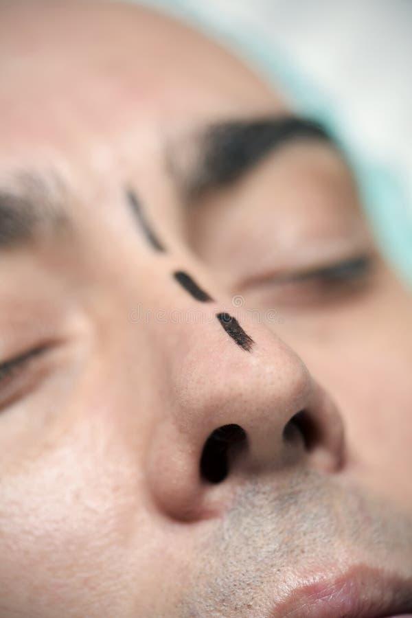 Homme environ pour avoir un rhinoplasty photos stock
