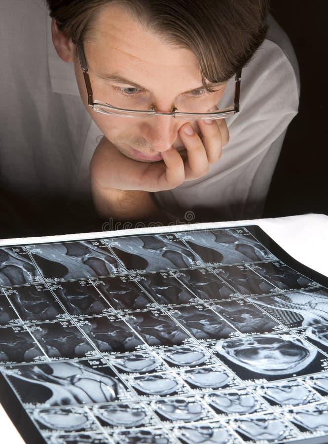 Homme inquiété regardant son MRI image libre de droits