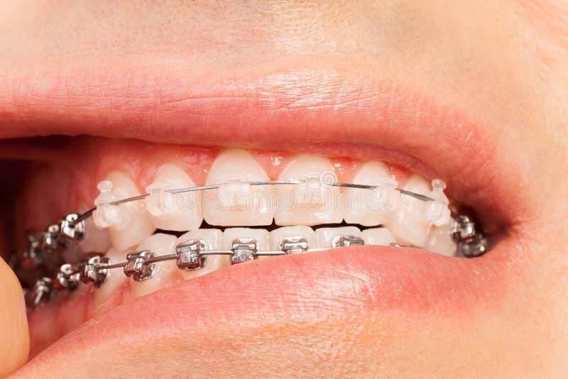 Homme montrant des orthodonties et la correction de morsure photos stock