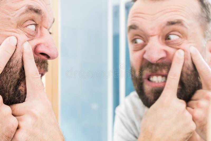Homme regardant des boutons sur son visage photo libre de droits