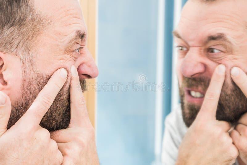Homme regardant des boutons sur son visage image libre de droits