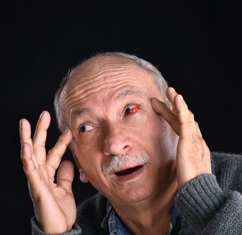 Homme supérieur avec l'oeil injecté de sang rouge irrité souffrant de la douleur images libres de droits