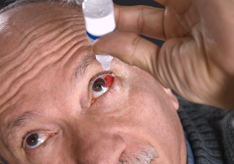 Homme supérieur s'égouttant un oeil injecté de sang rouge avec des gouttes pour les yeux photos libres de droits