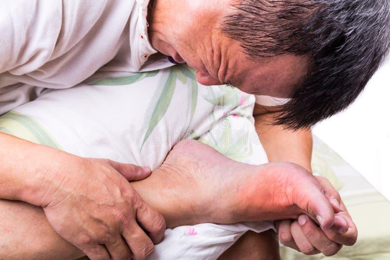 Homme sur le pied d'étreinte de lit avec l'inflammation gonflée douloureuse de goutte image stock