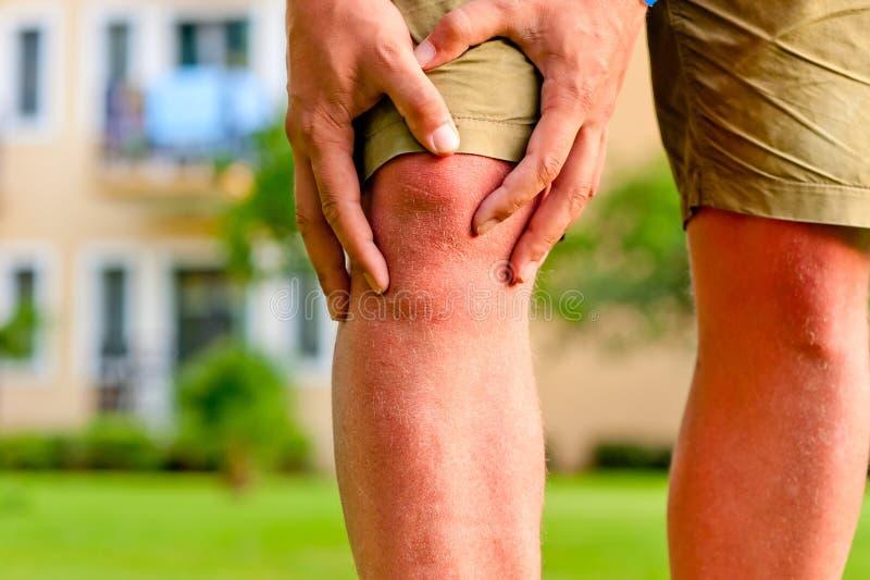 Homme tenant le genou de blessure de main image stock