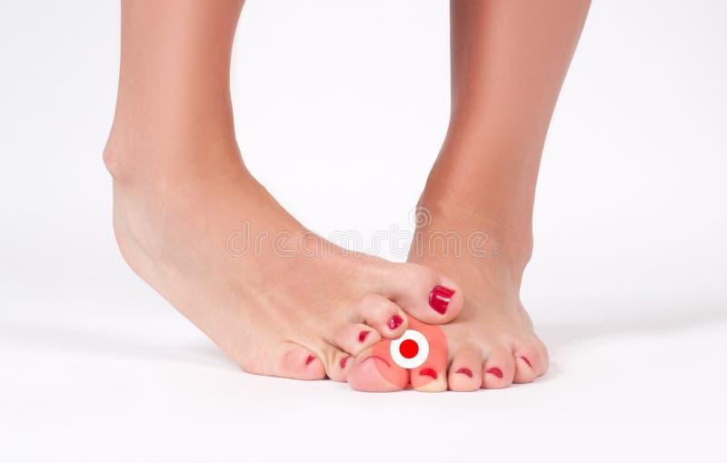 Hongo de pie Pies femeninos en el fondo blanco imagen de archivo