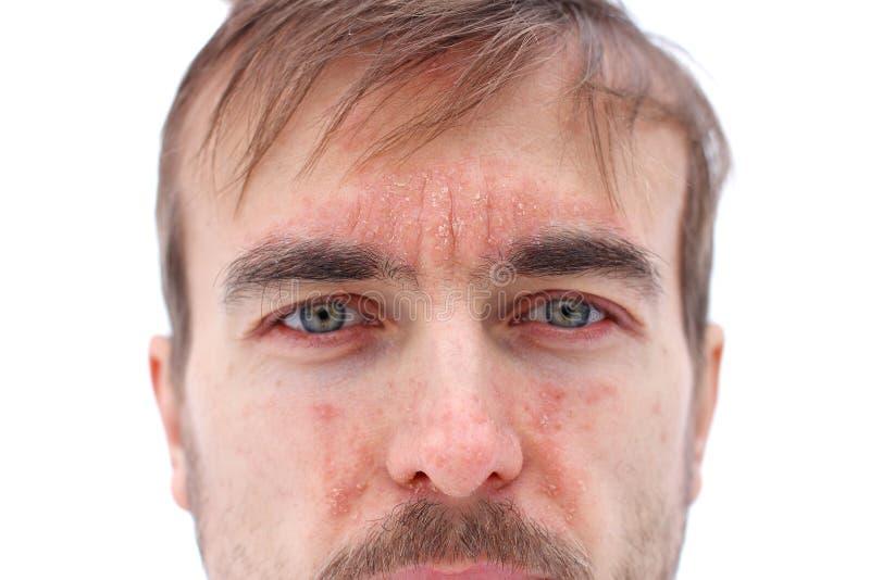 Hoofd van de zieke mens met rode allergische reactie op gezichtshuid, roodheid en schilpsoriasis op seizoengebonden neus, voorhoo stock foto's