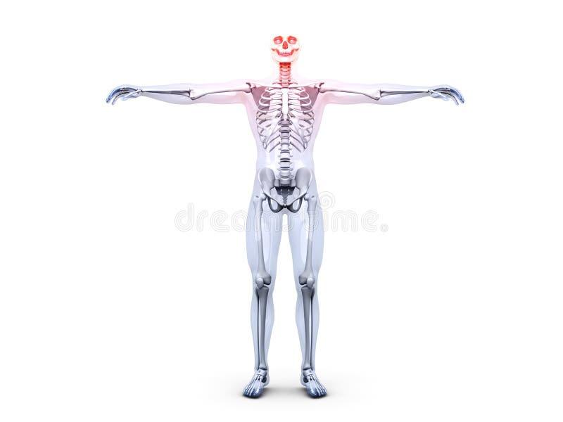 Hoofdpijn - Anatomie stock illustratie