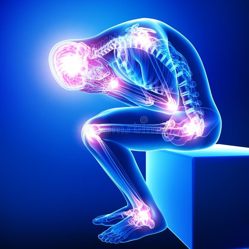 Hoofdpijn/migraine met gezamenlijke pijn royalty-vrije illustratie