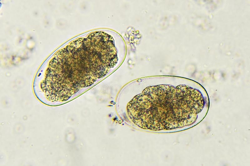 Hookworm in stool. Eggs of Hookworm in stool, analyze by microscope royalty free stock images