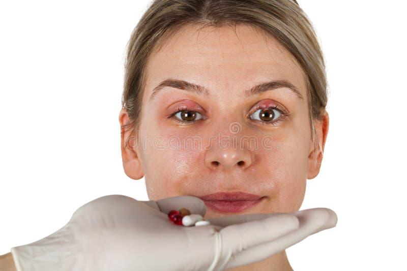 Hordeolum op hoger ooglid Virale besmetting stock foto