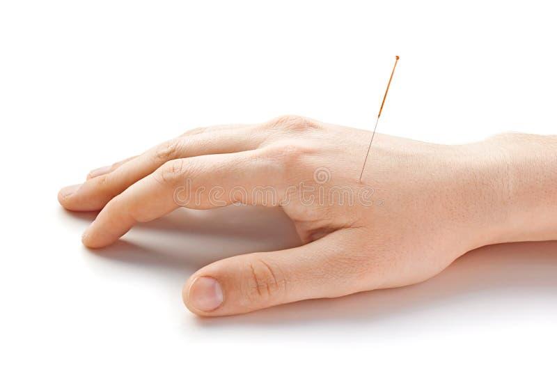 horisontalbehandlad med akupunktur hand royaltyfri foto