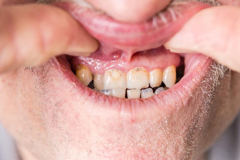 Rotten front human adult male teeth. Horizontal close up image of front human male teeth that are rotten and diseased royalty free stock photography