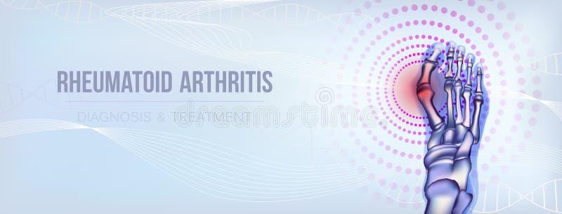 Rheumatoid arthritis bones concept stock illustration