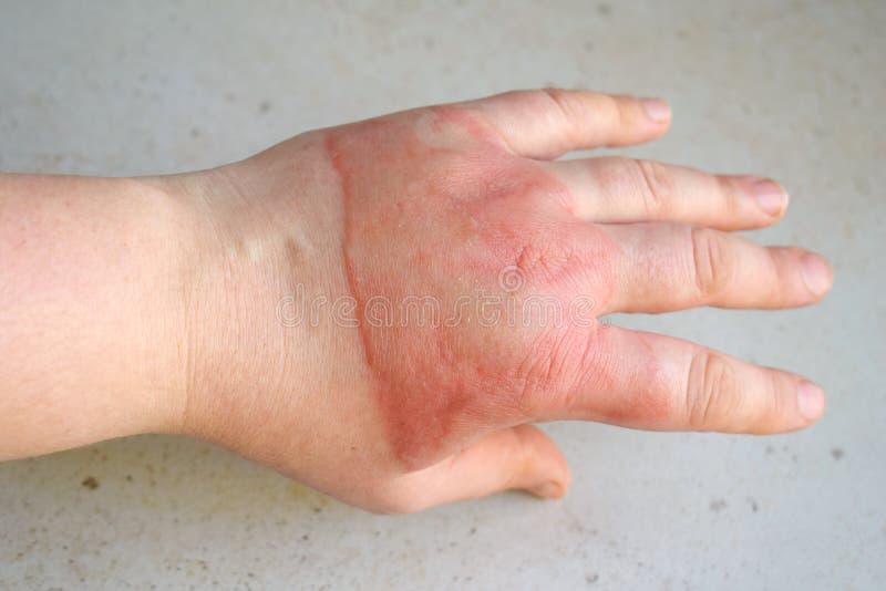 Horrible second degree burns on female hand on white background stock photography