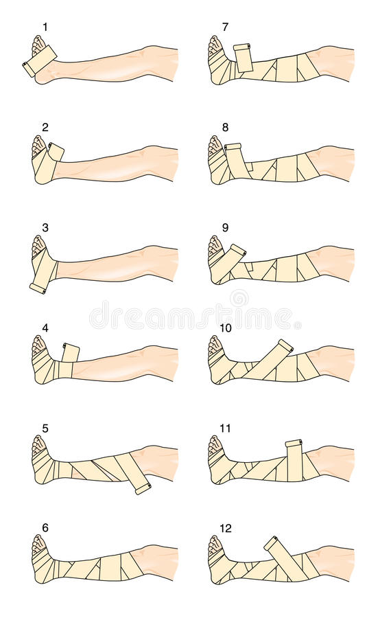 How to apply a Putter leg bandage. The steps required to apply a Putter leg bandage for venous oedema, leg ulcers and thrombophlebitis stock illustration
