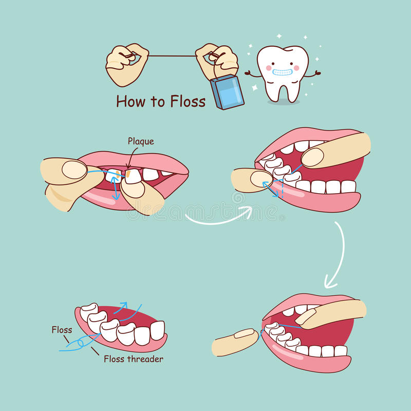 How to floss. Cartoon tooth with floss, great for dental care concept vector illustration
