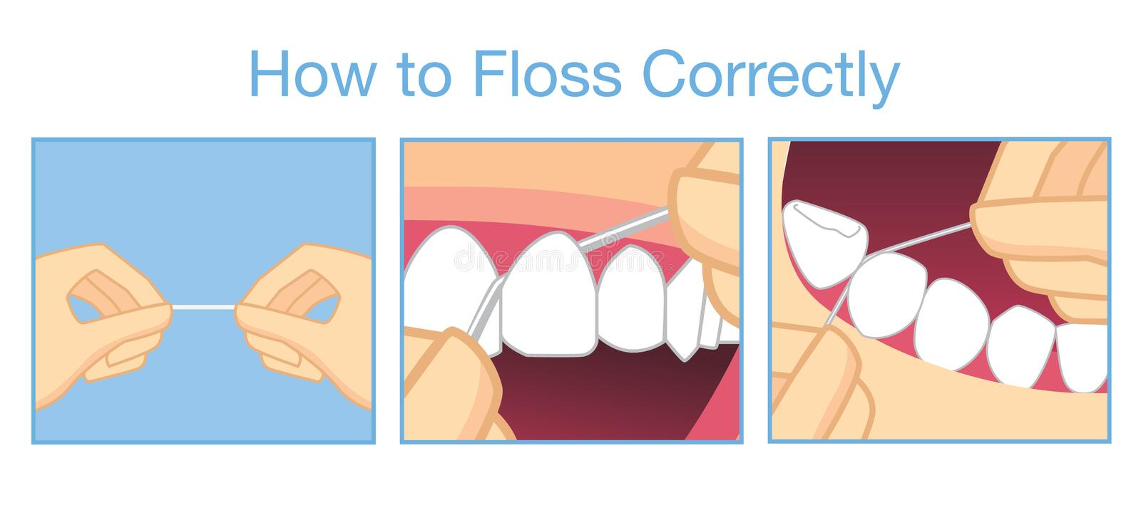 How to floss correctly for cleaning teeth. Illustration about step to floss correctly for cleaning teeth stock illustration