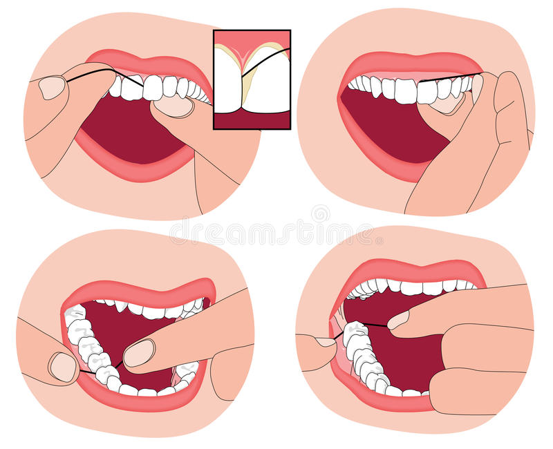 How to floss your teeth. Flossing teeth, showing the floss material between the teeth and into the surrounding gum. Created in Adobe Illustrator. Contains stock illustration