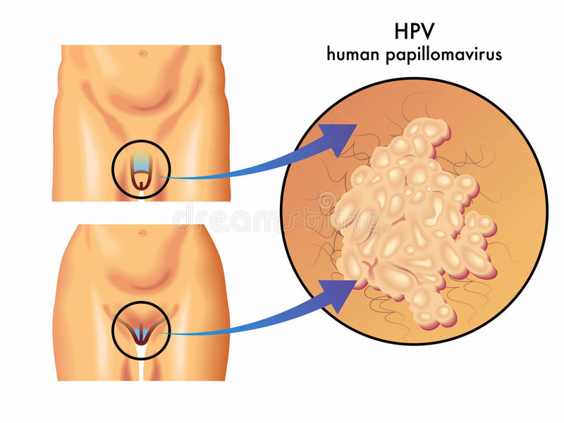 hpv istoty ludzkiej papillomavirus ilustracja wektor