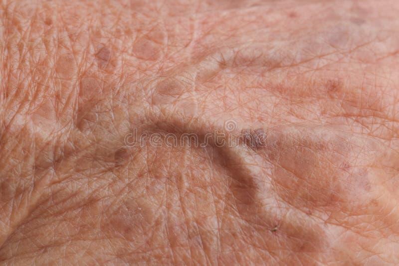 Hud för gammal kvinna fotografering för bildbyråer