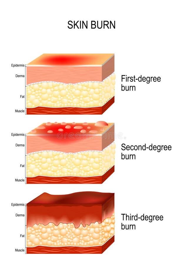Hudbrännskada Tre grader av brännskador vektor illustrationer