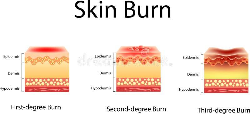 Hudbrännskada Tre grader av brännskador typ av skadan som ska flås, vektorillustration stock illustrationer