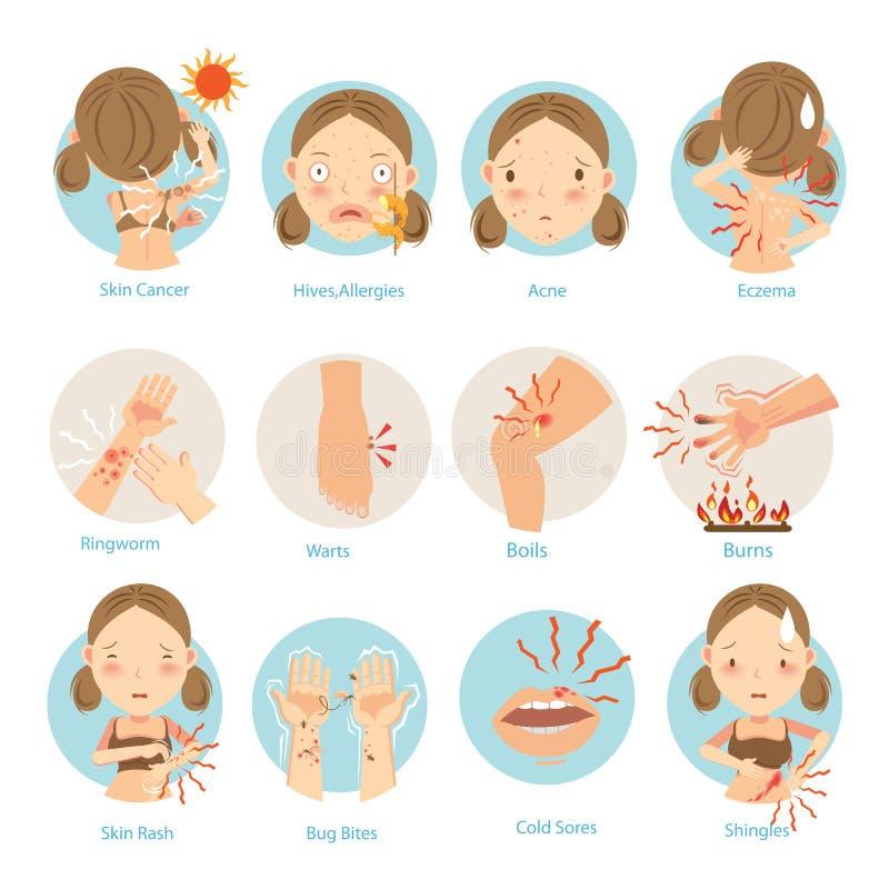 hudproblem royaltyfri illustrationer