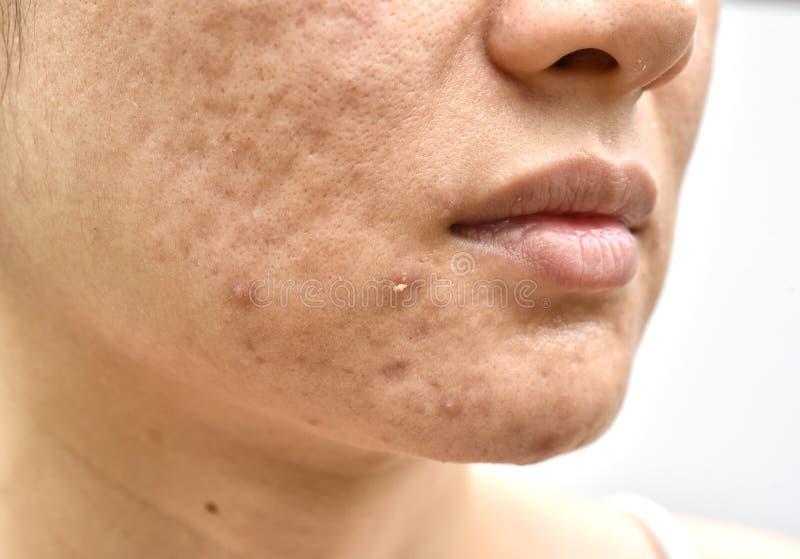 Hudproblem med aknesjukdomar, slut upp kvinnaframsida med whiteheadfinnar, menstruationutbrytningen, ärret och den oljiga fetthal arkivbilder