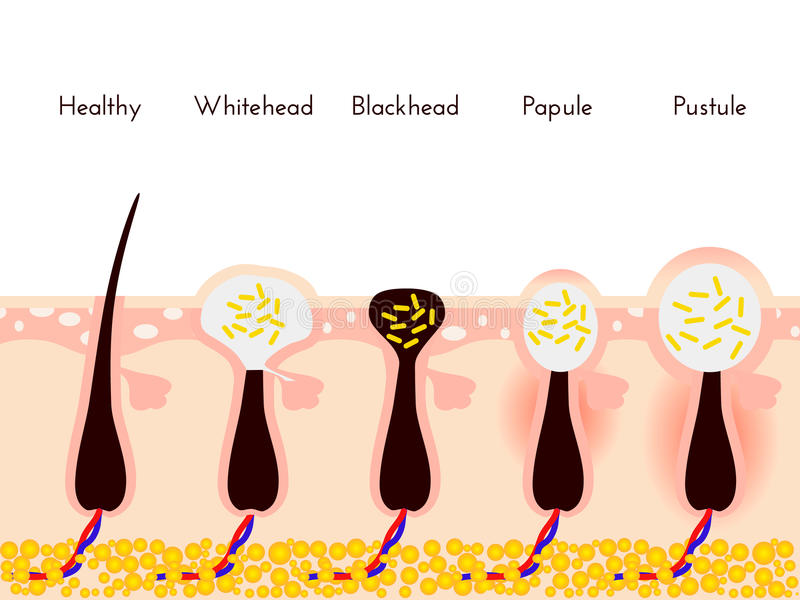 hudproblem Typer av aknefinnar Ansikts- behandlingar och problemvektorillustration Whiteheads och pormaskar royaltyfri illustrationer