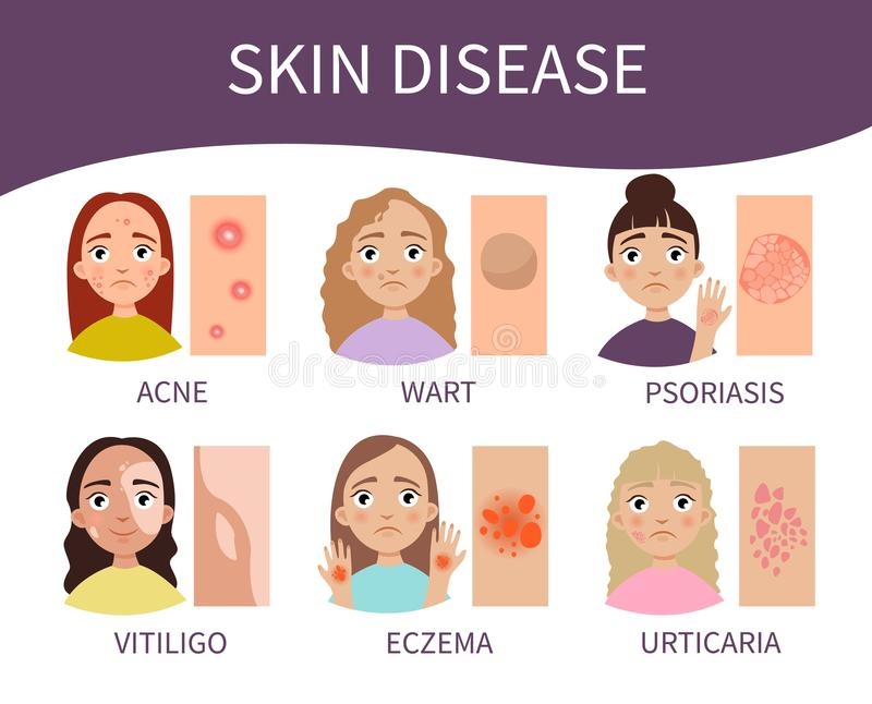 Hudsjukdom vektor illustrationer
