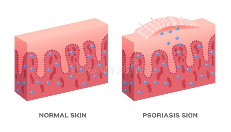 Hudsjukdom/psoriasis royaltyfri illustrationer