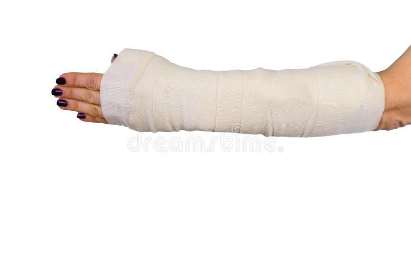 Hueso de brazo quebrado de la mujer en el molde, mano enyesada en el fondo aislado blanco foto de archivo