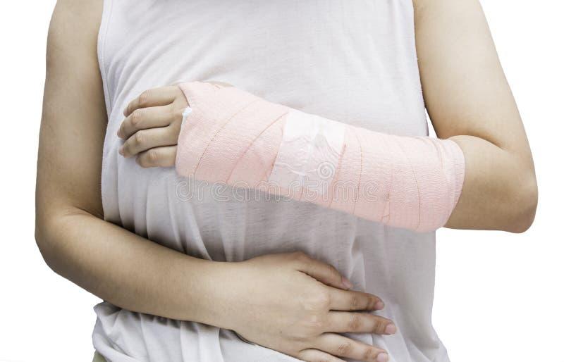 Hueso de mano de la mujer roto de accidente con la honda del brazo imagen de archivo libre de regalías