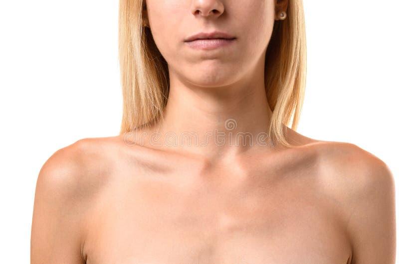 Huesos de cuello que resaltan de una mujer joven anoréxica fotos de archivo libres de regalías