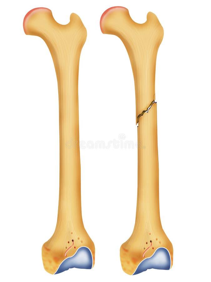 Huesos quebrados stock de ilustración